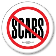 no scabs button